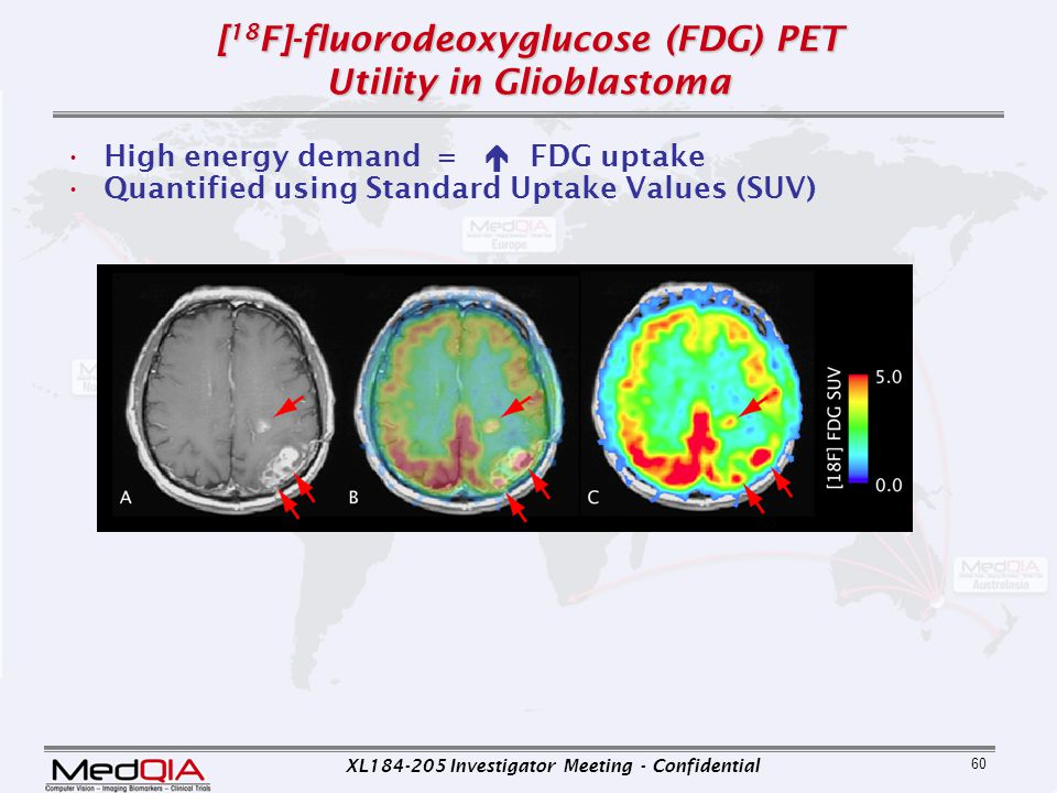 [18F]-fluorodeoxyglucose (FDG) PET Utility in Glioblastoma